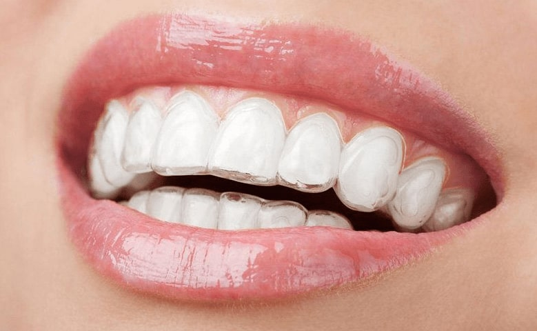 Learn about the cost of Invisalign at North Pier Dental in Chicago's Streeterville neighborhood