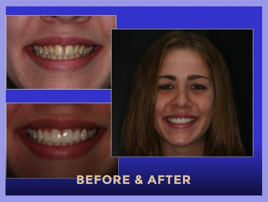 Before and after photos of dental veneers