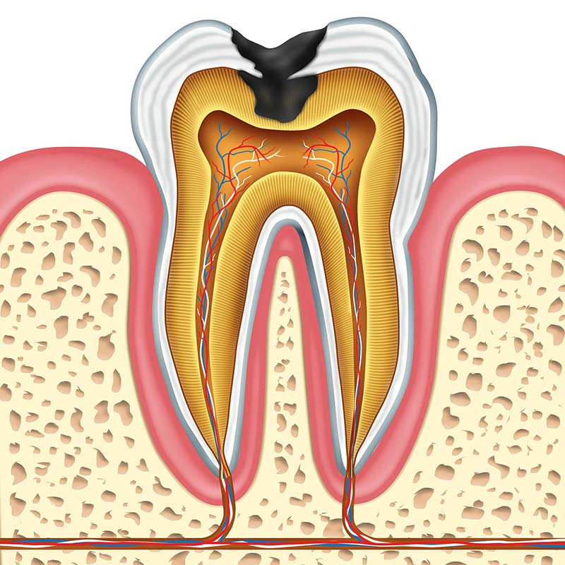 treatment-options-cavities-chicago-streeterville.jpg
