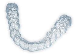 invisalign-for-adults.jpg