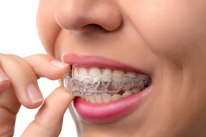 how-long-to-adjust-invisalign-aligners.jpg