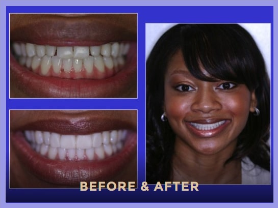 North Pier Dental offer porcelain veneers in Chicago's Streeterville neighborhood