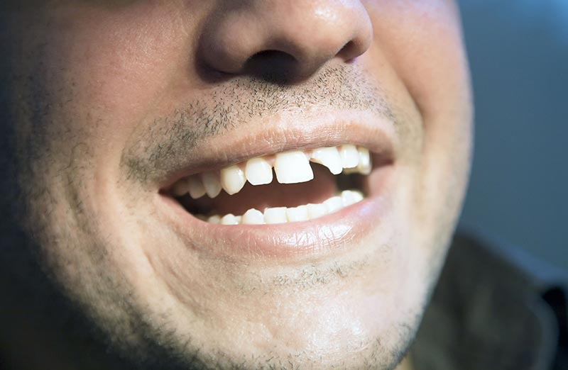 treatment-chipped-teeth-chicago-streeterville.jpg