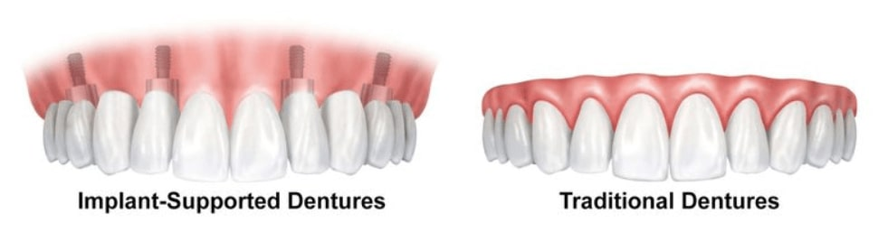 North Pier Dental offers traditional dentures and implant-supported dentures to replace missing teethville neighborhood