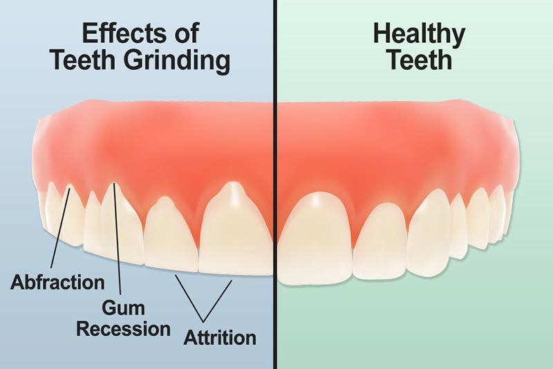 teeth-grinding-dental-damage.jpg